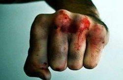 Харьковщина: мужчина избил жену до смерти на глазах у детей