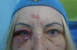 Зверство под Одессой: женщину-волонтера избили и душили