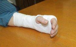 Помощник депутата от БПП сломал руку редактору газеты
