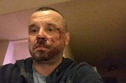 В Мариуполе избили лидера областной