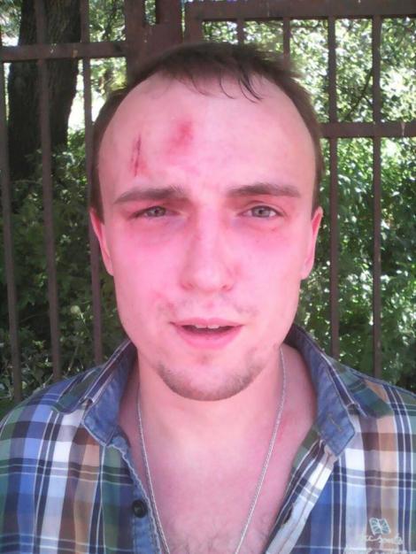 Избитые Медведько и Полищук попали в больницу, Бондарю сломали нос и выбили зубы