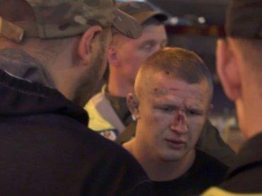 В Киеве группа неизвестных напала на болельщиков «Ливерпуля» в ресторане