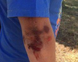 В Херсоне был избит журналист издания Мост