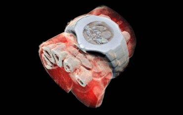 В Новой Зеландии создали рентген, который делает цветные трехмерные изображения