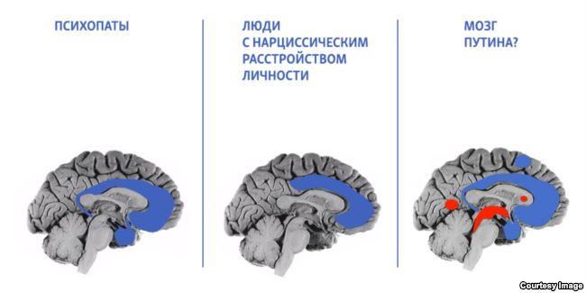 Путин глазами психиатра